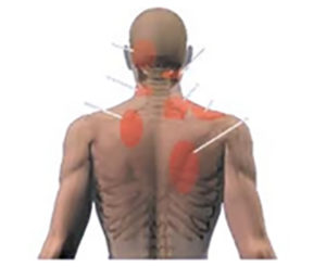 Areas of pain commonly experienced with prolonged poor sitting posture.
