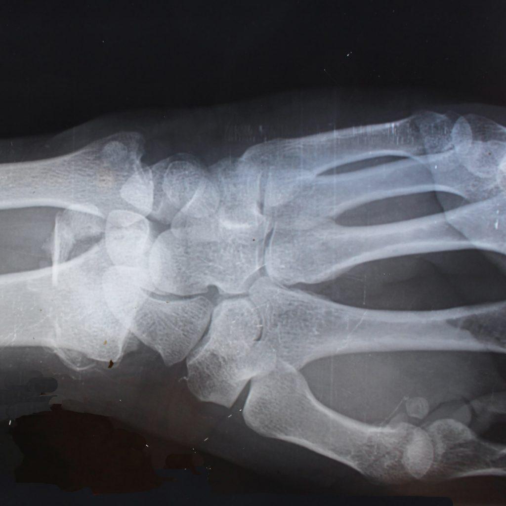 Static & Digital Motion X-Ray